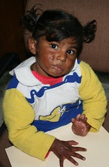 Gurdeep (ReSurge International) Tags: india cute girl best burn ngo w07 2007 interplast jalandhar surgicaltrip gss08