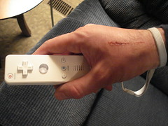 Nintendo Wii Injury