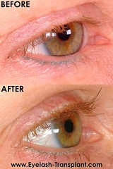 eyelash-transplant-com