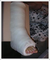 Clay C. big ugly leg cast