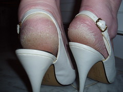 Extreme Closeup Heels (heelsandfeet) Tags: sexy feet fetish highheels bare wife heels slings ankles slingbacks stilleto callousedheels