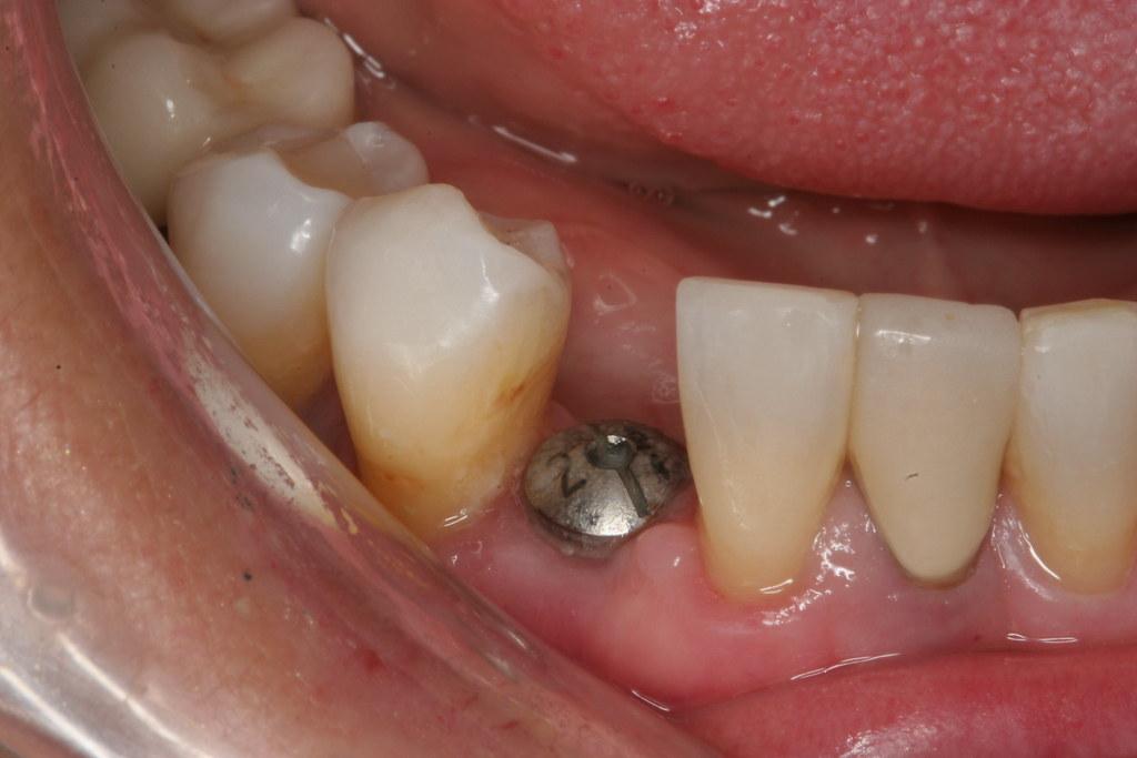 Dental implant before crown