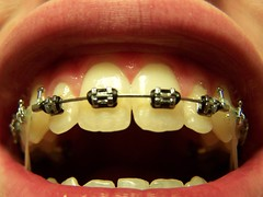 That's a smile... (Sam Cooper) Tags: black metal tooth ties wire missing braces teeth canine lips rubberbands