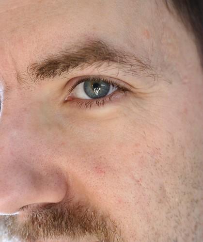 Eye of Pete