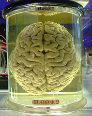 Human brain - please add comment or fav this if you blog with it.