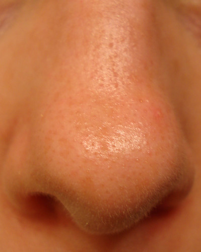 large pores on nose - photo #11