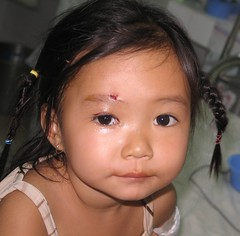 my tho days 10_11_ptosis girl after (ReSurge International) Tags: vietnam devon gala w07 2007 mytho movingpictures surgicalteamtrip 2vietnam0208 gss08 gi08