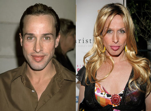 Alexis Arquette Before And After?