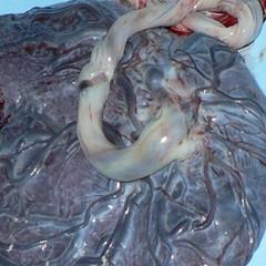 placenta crop