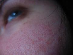 頬の毛穴が目立つのは「たるみ」が原因!