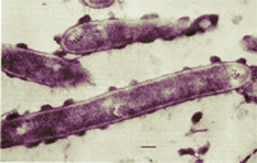 Clostridium_thermocellum