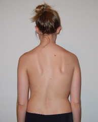 Scoliosis image