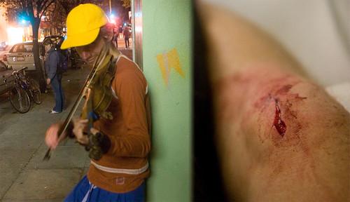 photo injury