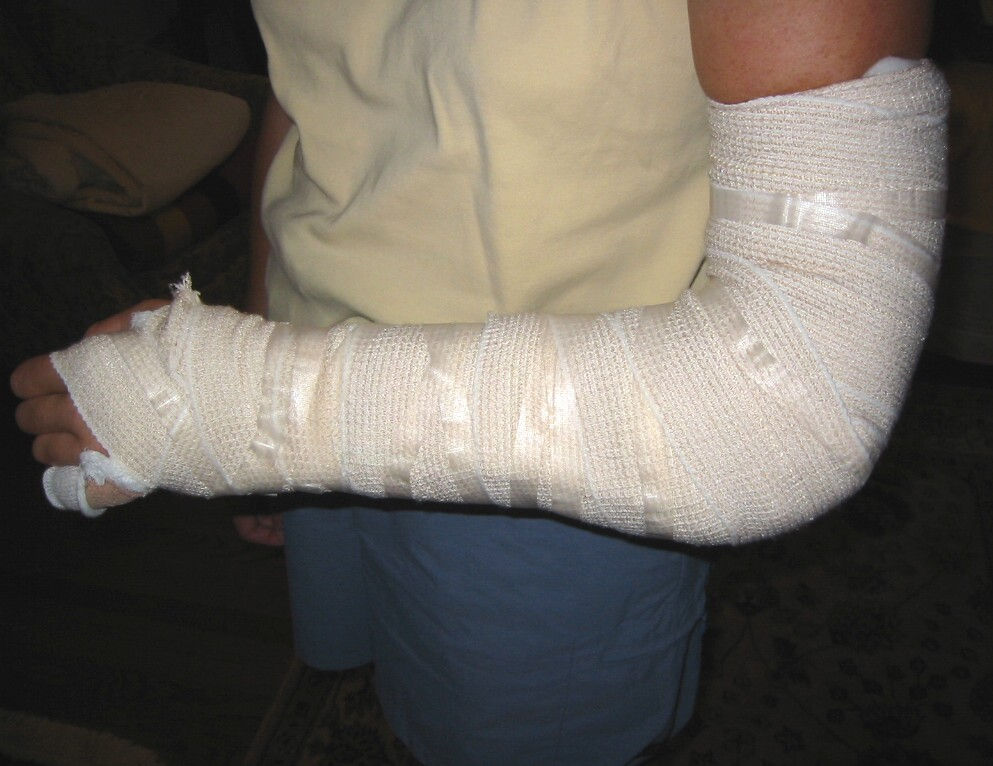 My Splint 2006