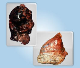 Plaman afectat de COPD si plaman sanatos