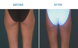 thigh_liposuction_newimage by New_Image