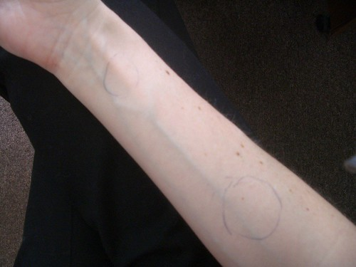 S_s_arm_after_cast_skin.JPG