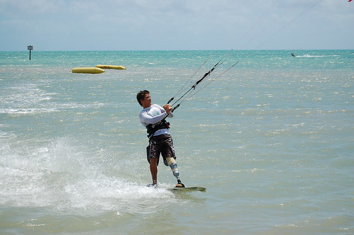 A kiteboarder on the water with what appears to be an above the knee amputation of the left leg.