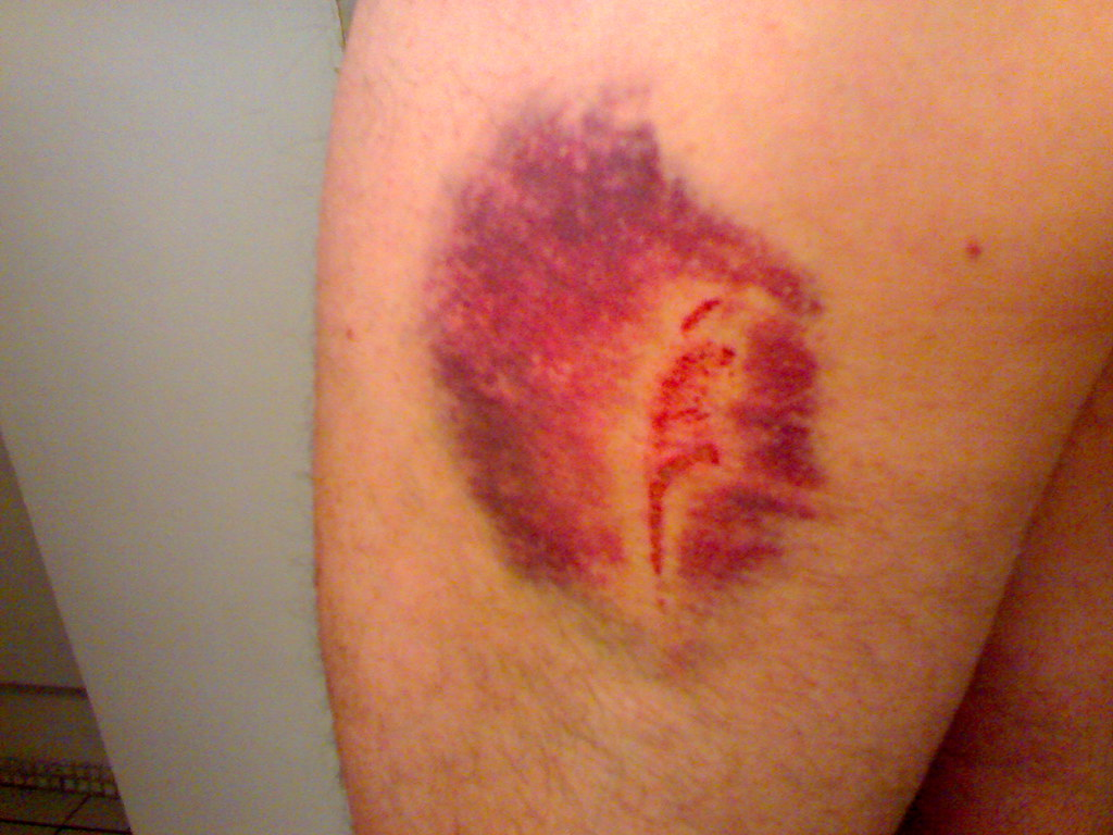 The World's newest photos of thigh and wound - Flickr Hive Mind