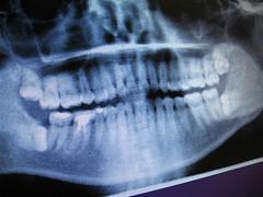 Dental X-ray (joeysplanting) Tags: me joey joel teeth dental xray dentist wisdomteeth rootcanal molar