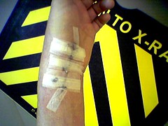 TO X-RA (Don't Worry) Tags: ian crash surgery xray wrist picnik
