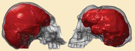 Homo floresiensis vs. microcefalo