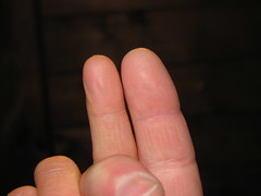 Doug and Angie's fingers
