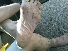 My feet, post Clinton Lake Trail Race