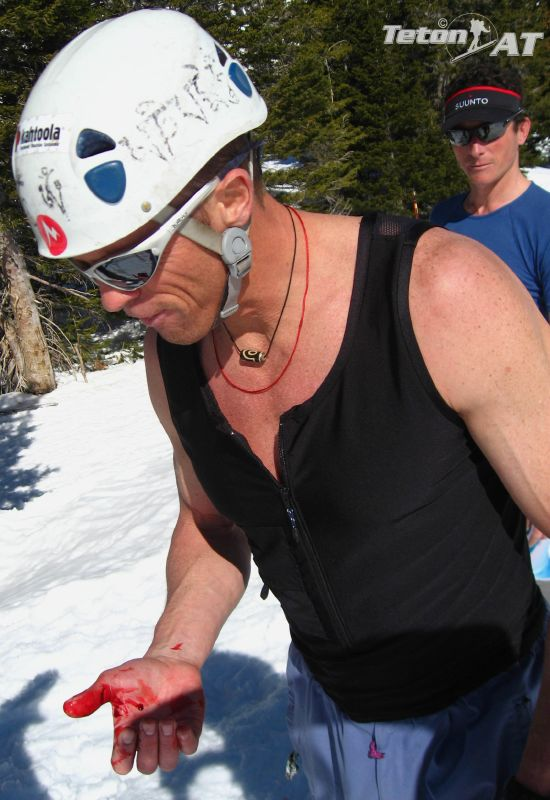 Brian Harder slices his hand on his skis