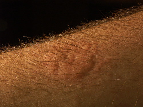 dorsal view of arm, bed bug colony feeding
