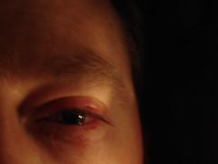 Raquetball eye injury (DanC) Tags: eye dan raquetball medical sports booboo injury