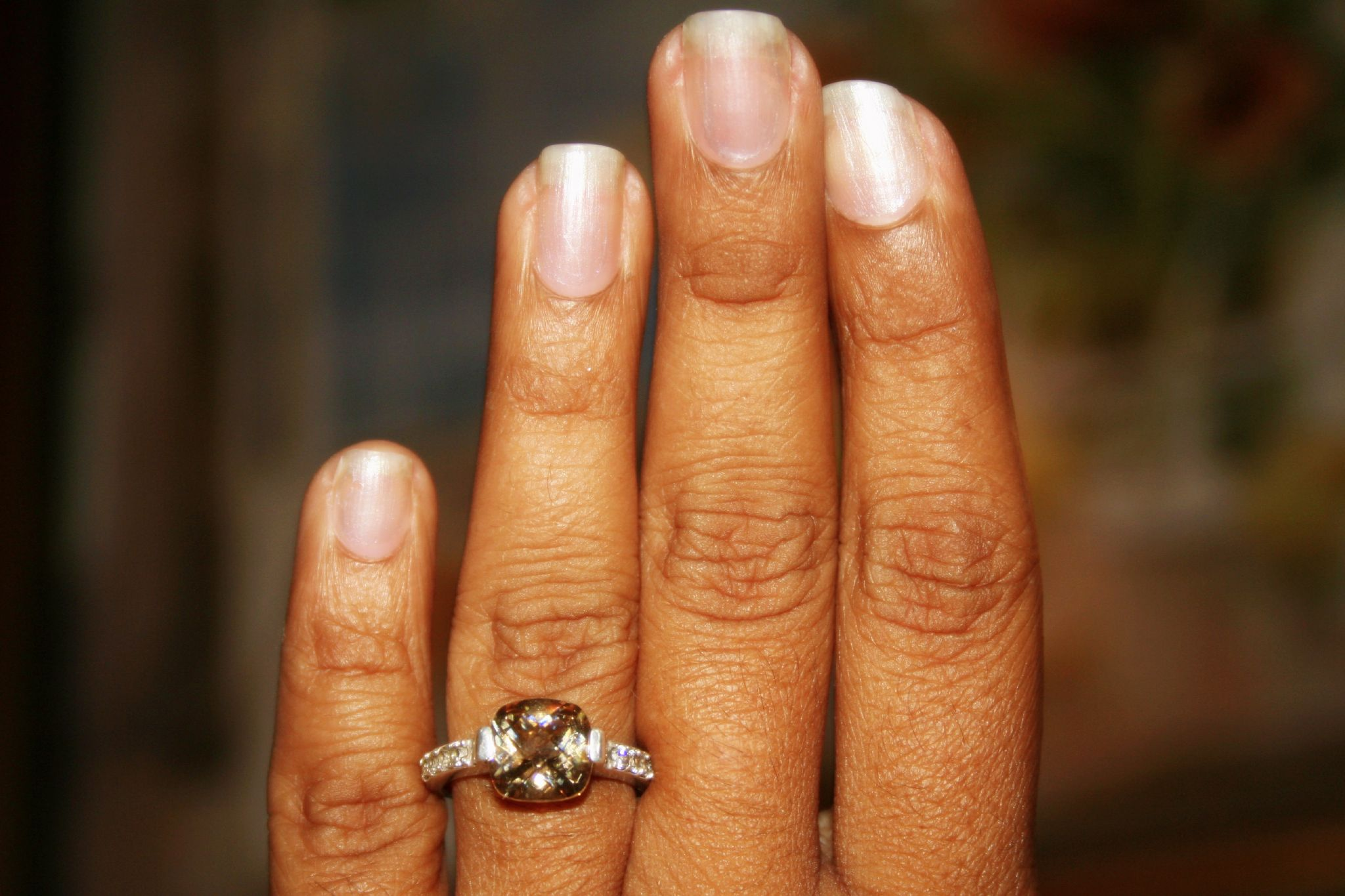 Why the fingers are bent nails and what should be done to fix it
