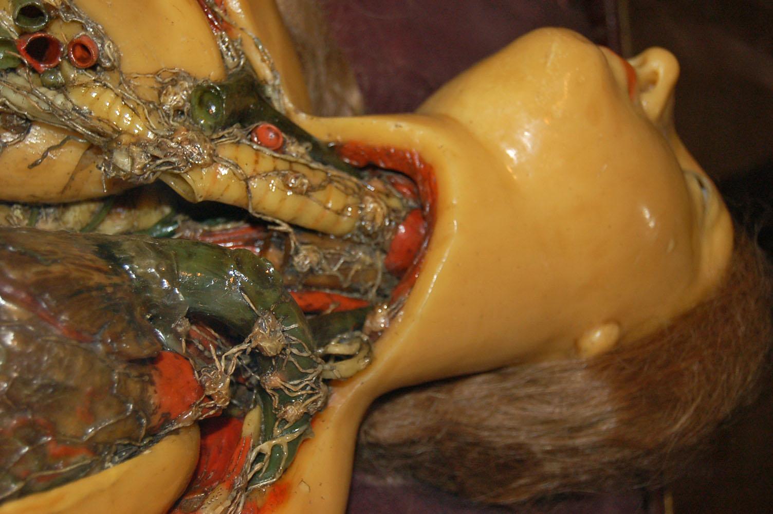 (グロ注意)女の子の解剖・内臓画像 5体目YouTube動画>8本 ニコニコ動画>1本 ->画像>306枚
