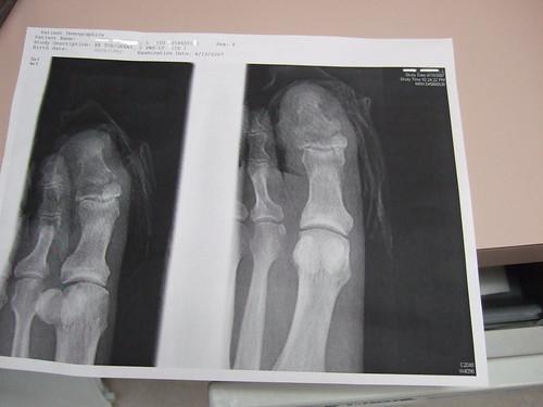 broken toe. time says roken toe,
