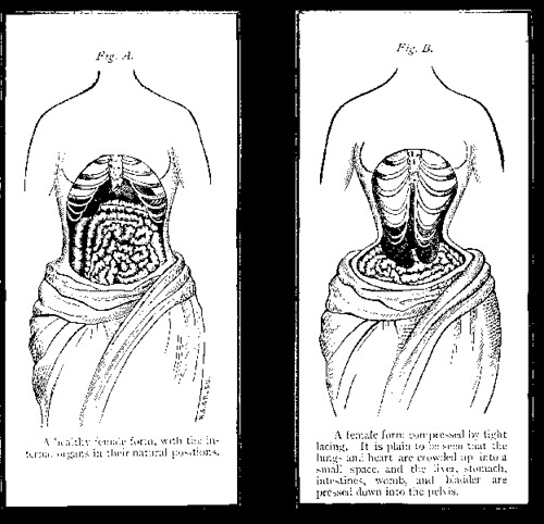 Pain of the Corset