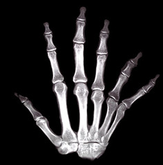 extra digit xray gif (playing.with.gifs) (Gravityx9) Tags: fab photoshop altered hand oneofakind nuclear xray chop gif experimentation animatedgif magical synthetic outofthisworld mosca imagemanipulations intergalactic specialeffects sfx 0706 allyouneedislove global2 dirtyword realsurreal creativephoto 072706 psfo anawesomeshot wowiekazowie anythingdigital extraordinarycompositions psjunkies trabajarconphotoshop photoshopmasterpiece photosthatrock piesymanos gaveyachills yourpreferredpicture highcreativity digitaleloquence clevercreative psfofamily totalphotoshop allkindsofbeauty qualitypixels artdesignfantasy extremest sensationalcreations
