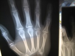 Bones (keone) Tags: broken ouch finger pinky xray bones fracture