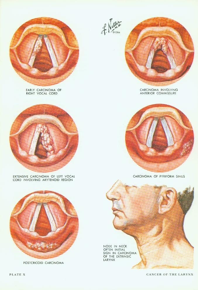 larynx anatomy netter - photo #20
