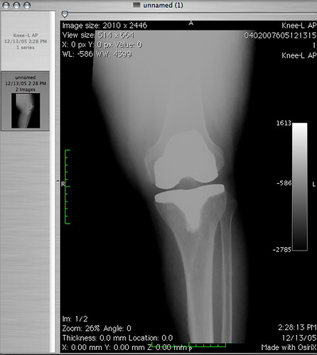 my left knee back to front view after total knee replacement