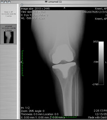 Rehabilitación Protesis de Rodilla