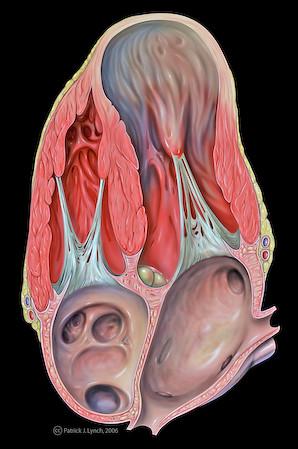 NCCT brain showing right parietal extradural hematoma with