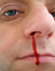 29/04/2007 (Day 150) - Nosebleed
