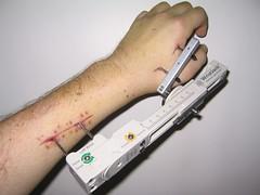 Updated Ex-Fix Pics (dozens) Tags: broken ouch injury bones wrist scar broke external fixator
