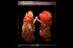 Blood Vessels in Lung