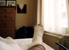 In bed with a broken foot.