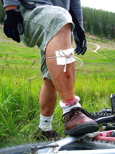 Improvised First Aid - Winter Park, Colorado