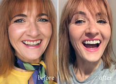 Before and after teeth filing and whitening (Philips Zoom process review)   Not Dressed As Lamb (Not Dressed As Lamb) Tags: teeth whitening philips zoom filing smile