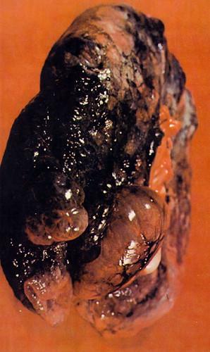 Plaman de fumator