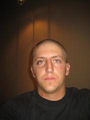 Swelling and black eye (warhof) Tags: head cut injury surgery wound scar staples blackeye