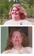 Before&After (red clover) Tags: questions georgia doctor wls weightloss gastricbypass rny surgery fat gastric bypass diet morbidobesity obese obesitysurgery loseweight redhead bbw self portrait mother mom beauty